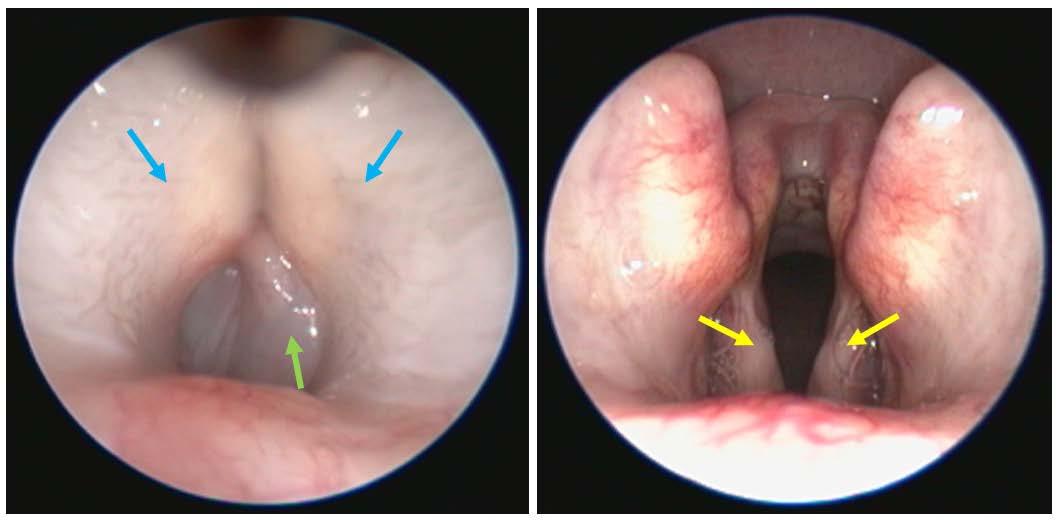 examen du larynx d'un chien brachycéphale
